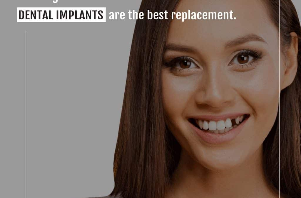 What are Dental Implants? | What are the advantages of dental implants