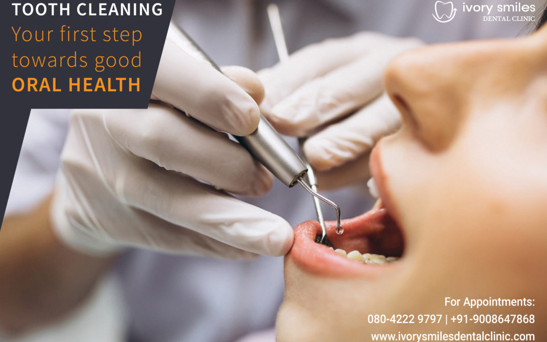 Tooth Cleaning : Pediatric Dentists in HSR Layout