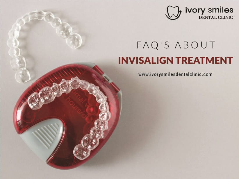 Invisalign: The most modern, effective and comfortable way to a great smile