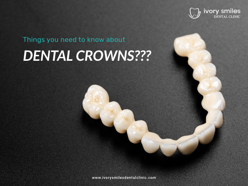 Things you need to know about Dental crowns
